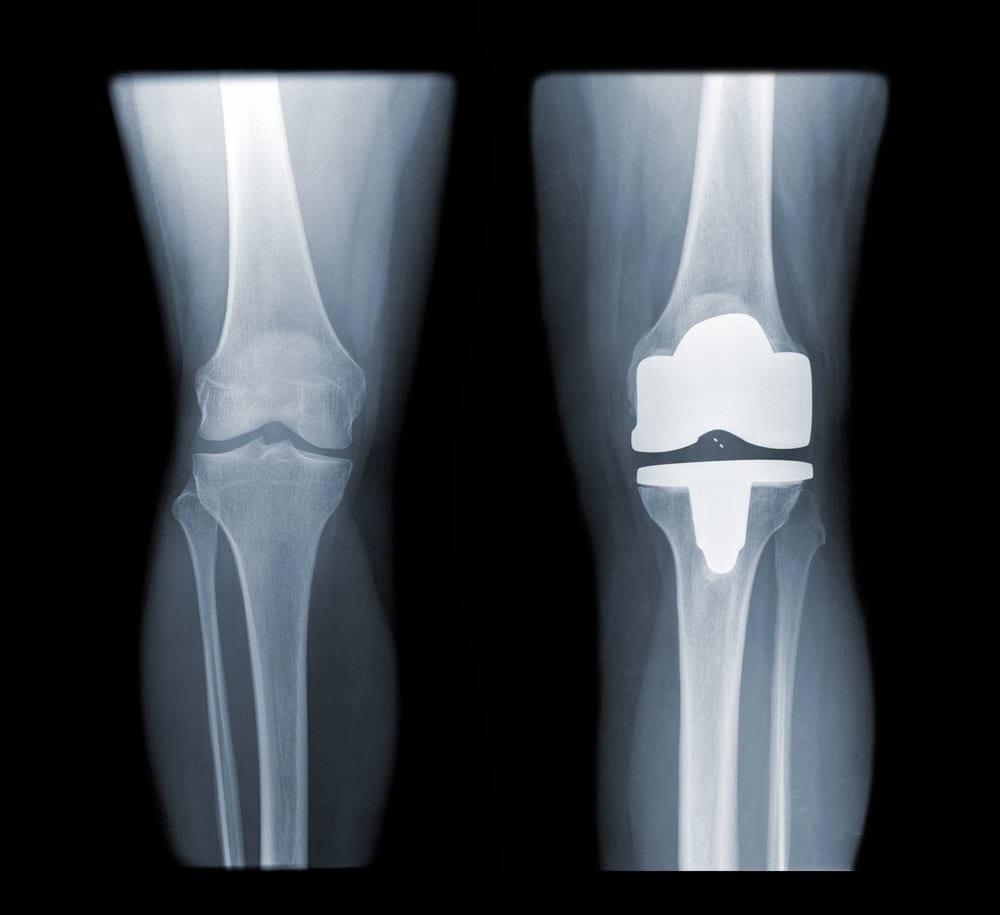 ניתוח-להחלפת-מפרק-הברך